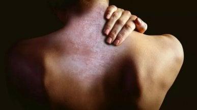 Psoriasi, la malattia infiammatoria che va oltre la pelle