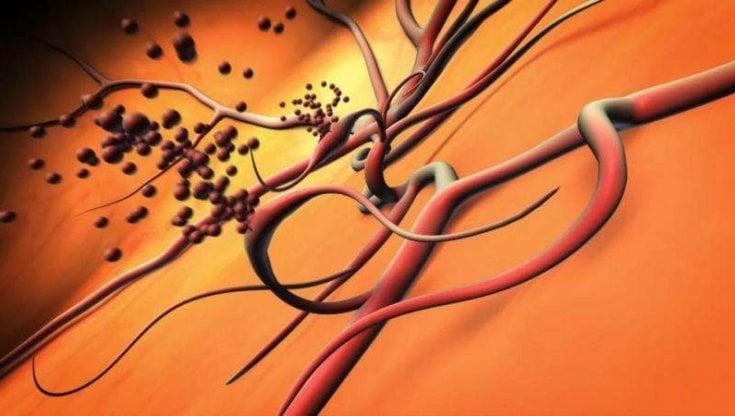 Iperglicemia: può aumentare il rischio di retinopatia diabetica?