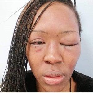 Bari, l'ex fidanzato la picchia: studentessa pubblica sui social la foto del volto tumefatto