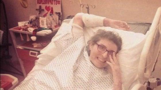 """Ex marito le diede fuoco, dopo un anno Maria Antonietta Rositani torna 'a casa': """"Segnale di speranza"""""""