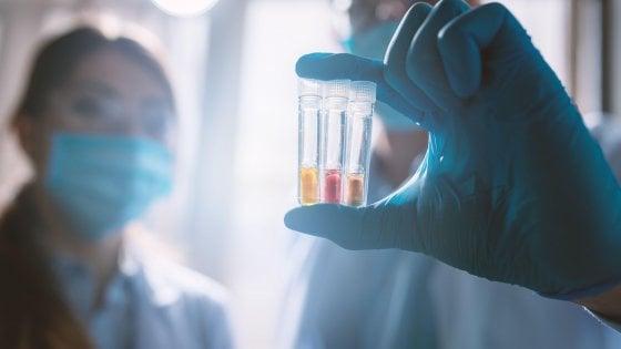 """Coronavirus, l'epidemiologo Lopalco: """"Una speranza dai test su un vaccino cinese"""""""