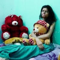 La felicità ritrovata delle donne indiane sfregiate con l'acido