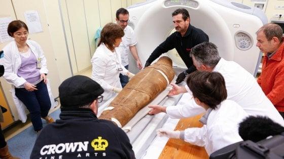 Bologna, la mummia fa la Tac in ospedale: tranquilli, è in buona salute