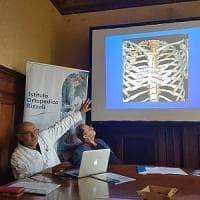 Bologna, impiantato uno sterno fatto con la stampante in 3D