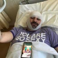 Bologna, tassista all'ospedale denuncia: picchiato dal branco