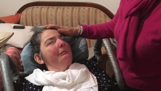Ha vissuto 38 anni in stato vegetativo, si è spenta Cristina Magrini