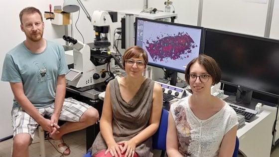 Università di Modena: aperta una breccia nella cura dell'Alzheimer