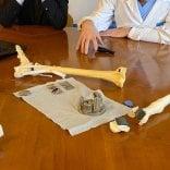 Caviglia ricostruita in 3D al Rizzoli: la prima al mondo