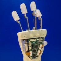 La mano bionica che si impianta senza chirurgia