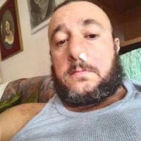 Lunigiana, dj disabile picchiato ad una festa e poi minacciato: