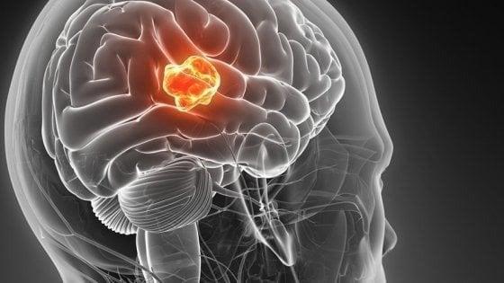 """Pisa, trovata una """"chiave d'accesso"""" per studiare il tumore al cervello"""