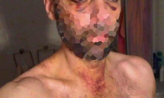 Genova, lo credono gay: pestato selvaggiamente
