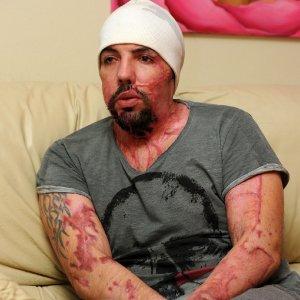 Brescia, sfregiò con l'acido il suo ex: il tribunale le toglie anche la seconda figlia neonata