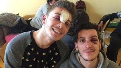 """Due giovani gay rapinati e presi a bottigliate dal branco: """"Aggressione omofoba"""""""