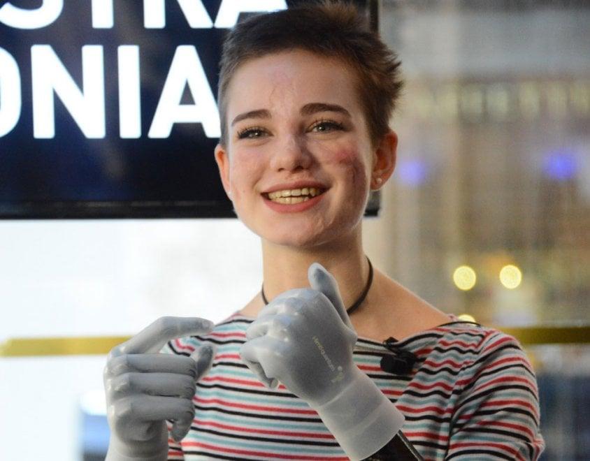 """Milano, nuove protesi per Bebe Vio: """"Touch screen, ricaricabili. Ho imparato anche a fare le corna"""""""