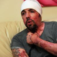 Brescia, sfregiò l'ex con l'acido: i figli in adozione. Videoappello della vittima: chiede aiuto con il crowdfunding