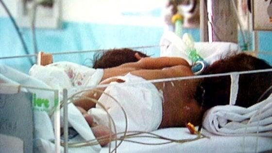 Due gemelline siamesi nate nell'ospedale di Bergamo, in comune hanno il fegato