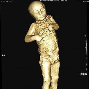La tac dei record: così rivivono i pompeiani morti nell'eruzione del 79 d.C.