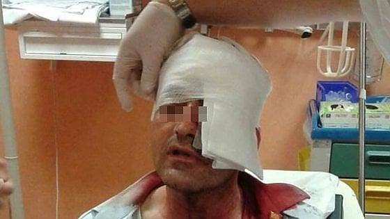 Aggredito autista ANM a Napoli, 30 punti di sutura al volto