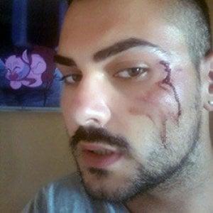 Napoli, Arcigay denuncia un'aggressione a Ponticelli