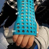Bambini: niente più gesso, ma un esoscheletro colorato e stampato in 3 D