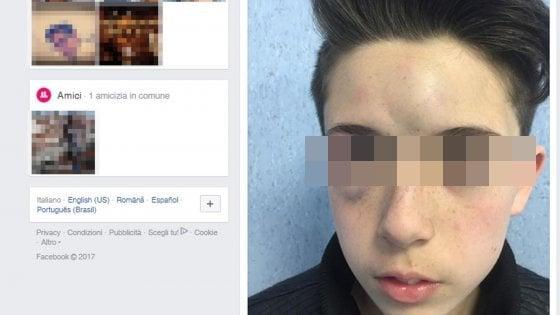 Aggredito da bulli nel Napoletano, genitori postano foto shock su Facebook