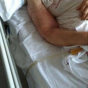 """Denuncia shock dei Verdi all'ospedale San Paolo: """"Paziente abbandonata in un letto sporco pieno di formiche"""""""