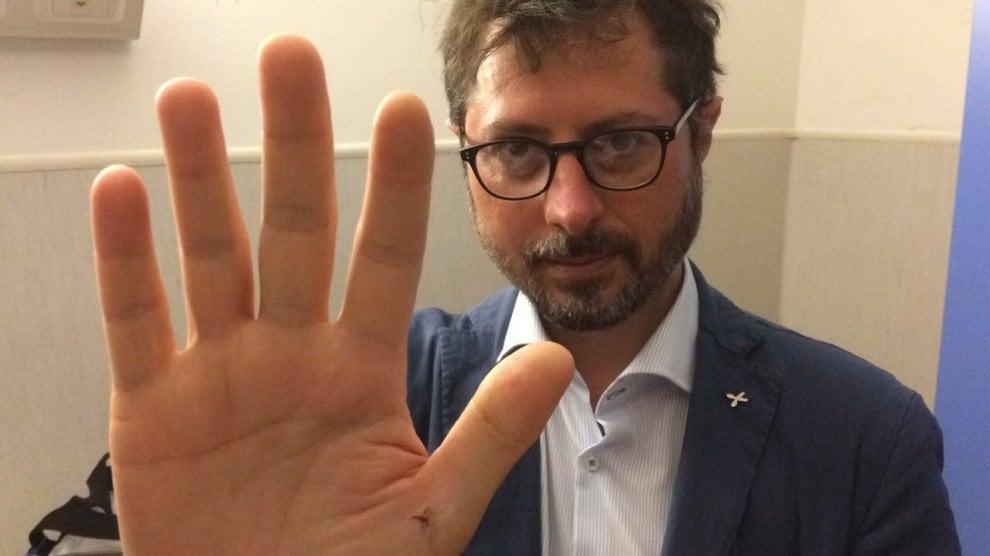 "Borrelli: ""Scarafaggi nell'ospedale San Bosco a Napoli"""