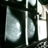 Un farmaco usato per l'osteoporosi riduce la recidiva nei tumori al seno
