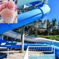 Bimbi con le bolle dopo il bagno in piscina nel Napoletano, l'l'Asl vieta la balneazione
