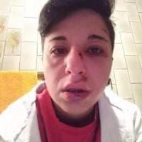 Potenza: messaggi di solidarietà a Giulia, la trentenne picchiata perché