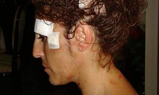 """""""Guardate, ecco le ferite che mi fece il mio ex compagno quando tentò di uccidermi"""": la scelta di Lidia"""