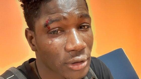 Aggressione razzista a Palermo, ventenne del Senegal picchiato. Le scuse dei cittadini