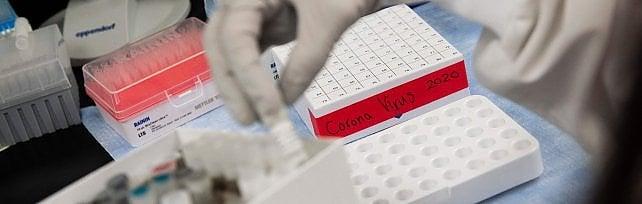 Coronavirus, in Sicilia nessun paziente  in terapia intensiva