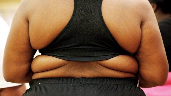 Obesity Week, da Parma l'allarme: bambini obesi in Italia come negli Usa