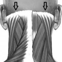 Parma, ateneo: terapia chirurgica mini-invasiva per curare cefalea