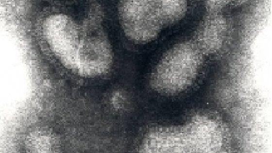 L'influenza a settembre: identificato all'università di Parma il primo virus
