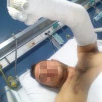 Roma, esplode un contatore del gas durante lavori: feriti due operai e il proprietario di...