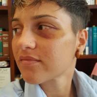 Roma, 24enne aggredita su bus con un pugno in pieno viso nell'indifferenza