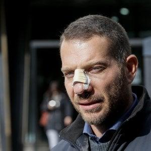 """Ostia, il cronista colpito con una testata da Spada: """"Ho paura, temo per la mia famiglia"""""""