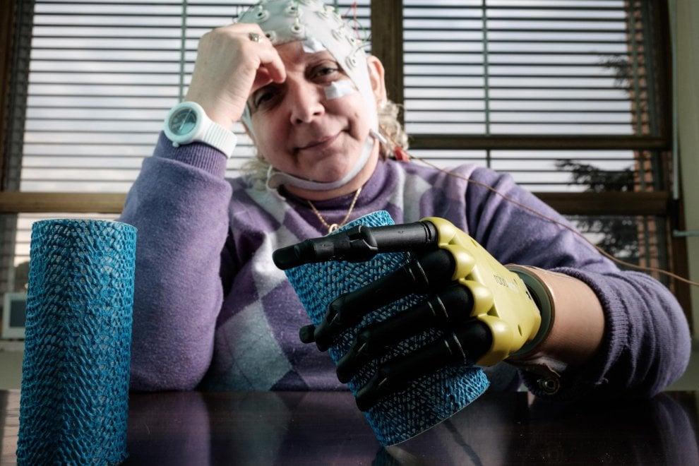 """Roma, l'italiana che ha ricevuto la mano bionica: """"Meraviglioso avere di nuovo il tatto"""""""