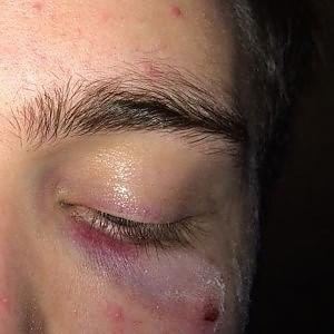 Torino, aggressione omofoba: studente omosessuale  picchiato su un bus dopo una festa