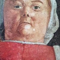 Nell'affresco del Mantegna spunta una malattia non ancora scoperta