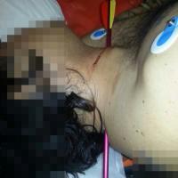 Miracolo a Torino: si presenta in ospedale con una freccia nel collo, salvato