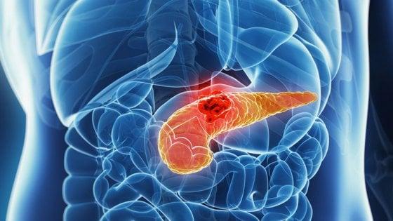 """Torino, i ricercatori delle Molinette: """"Sviluppata terapia vaccinale contro il cancro al pancreas"""""""