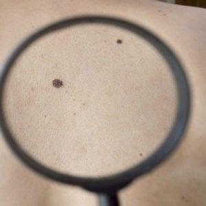 Torino, melanoma curato con l'omeopatia e il metodo Hamer,  un'altra dottoressa finisce sotto inchiesta