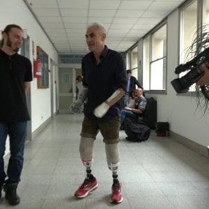 """Zanda l'ultrarunner cui sono stati amputati mani e piedi: """"Tornerò a correre con i miei arti bionici"""""""