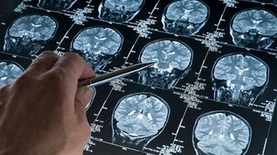 Torino, scoperto meccanismo molecolare che provoca le metastasi nel cervello
