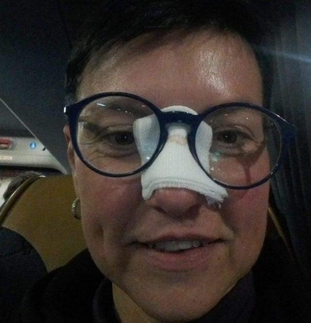 Torino, una pallonata di CR7 mette ko la tifosa: la foto del naso incerottato fa il giro del web