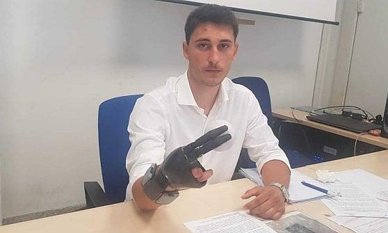 Perse le dita per colpa di un petardo: il Cto di Torino gli crea una mano bionica